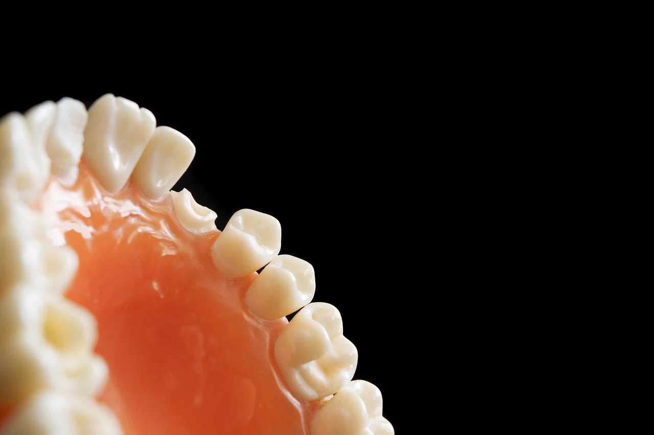 Avoid Bleeding Gums, Bad Breath and Teeth Decay